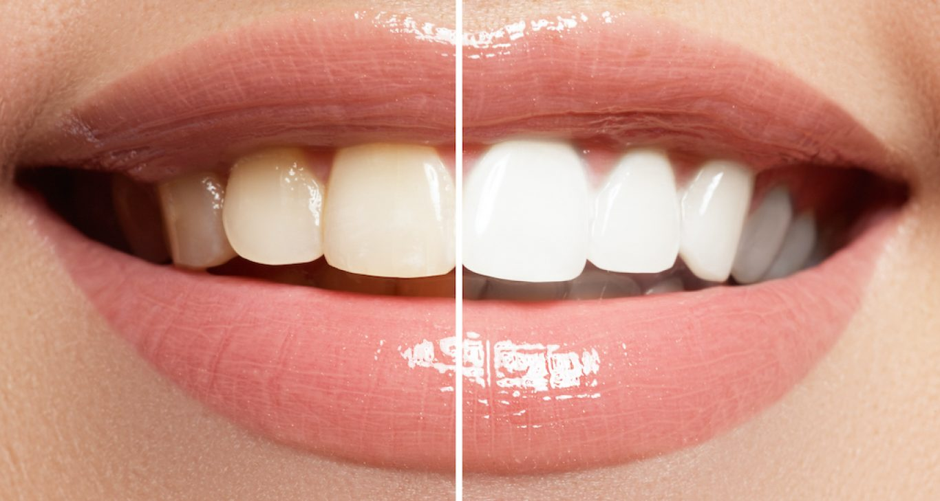 All Your Options When It Comes To Teeth Whitening