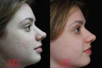 acne scar treatment nyc
