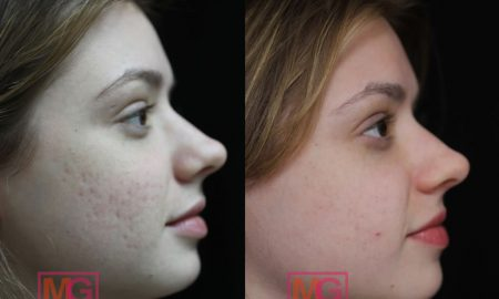 acne scar treatment nyc