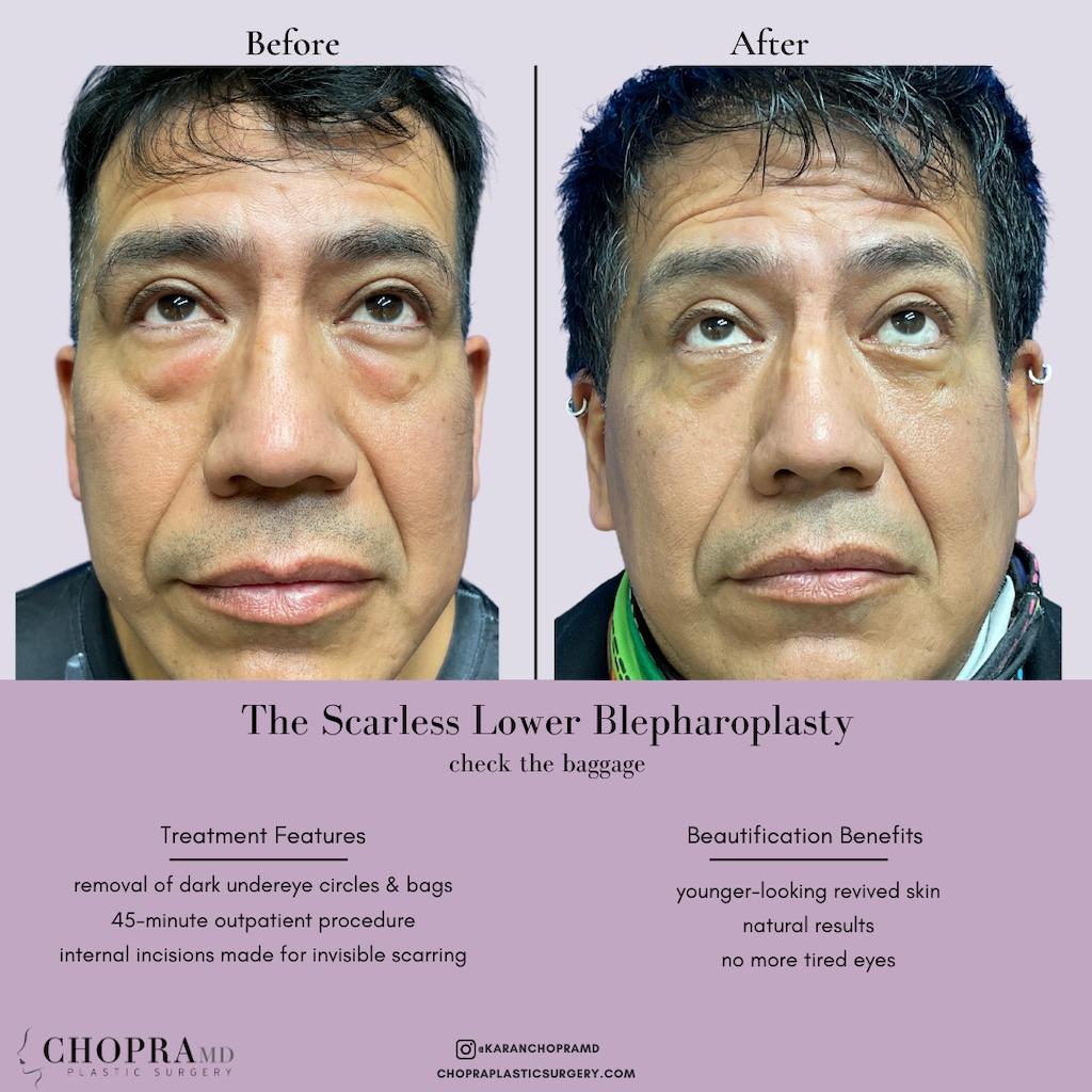 Lower Blepharoplasty
