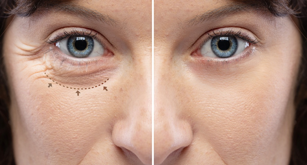Look Your Finest From The Masks Up With An Endoscopic Forehead Carry, dermalfillerbeforeandafter