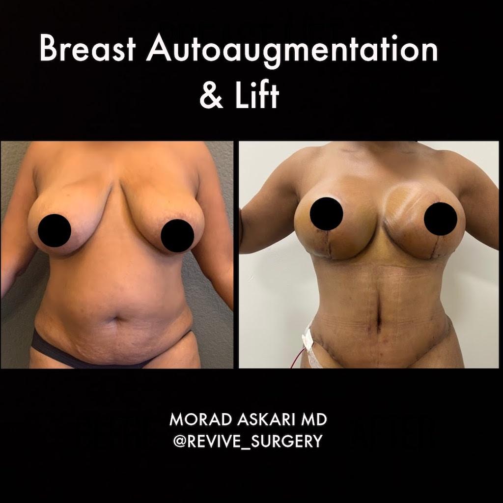 auto augmentation breast lift
