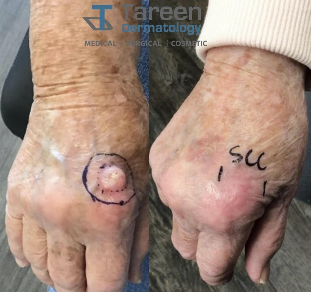 Tareen Dermatology