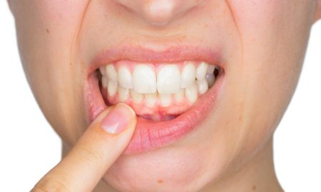 pinhole gum