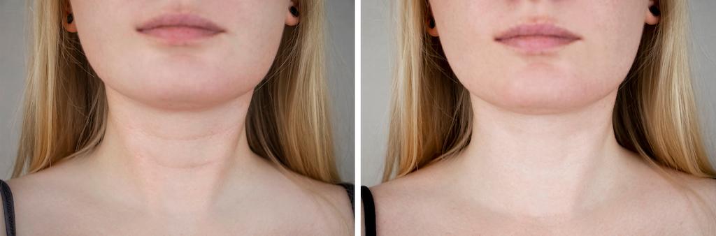 neck lines
