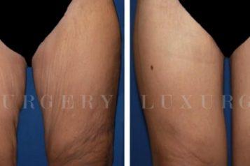 thigh rejuvenation