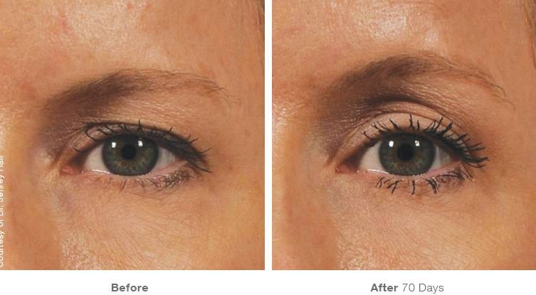 eyes before and after ultherapy