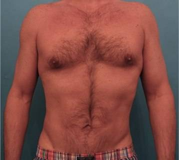 Male Liposuction 1 - After 1