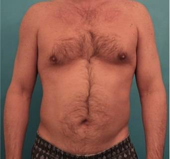 Male Liposuction 1 - Before 1