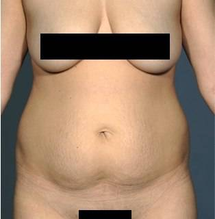 Tummy Tuck 1 - Before 1
