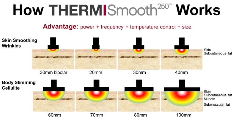 ThermiSmooth250_Penetrazione21