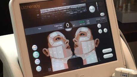 Ultherapy's Ultrasound Imageing