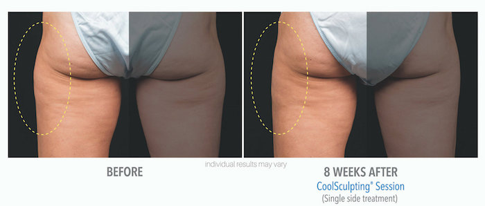Coolsculpting-Skinney-medspa-7