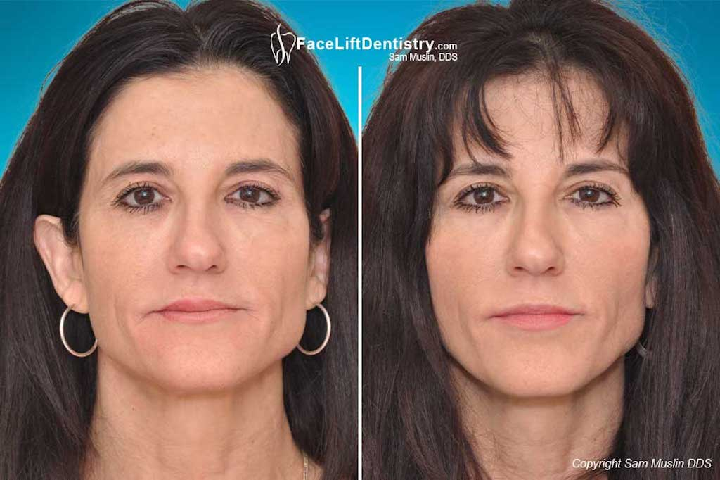 Facelift dentistry